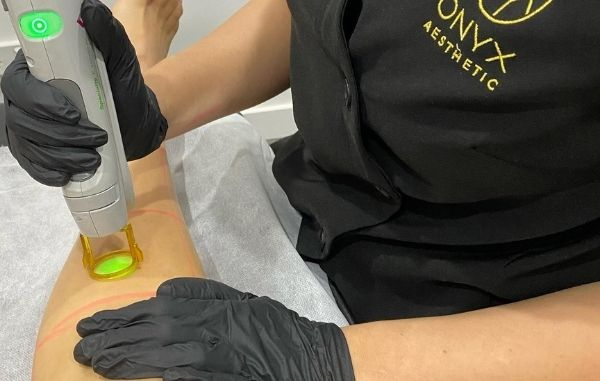 Onyx Aesthetic Laser Hair Removal