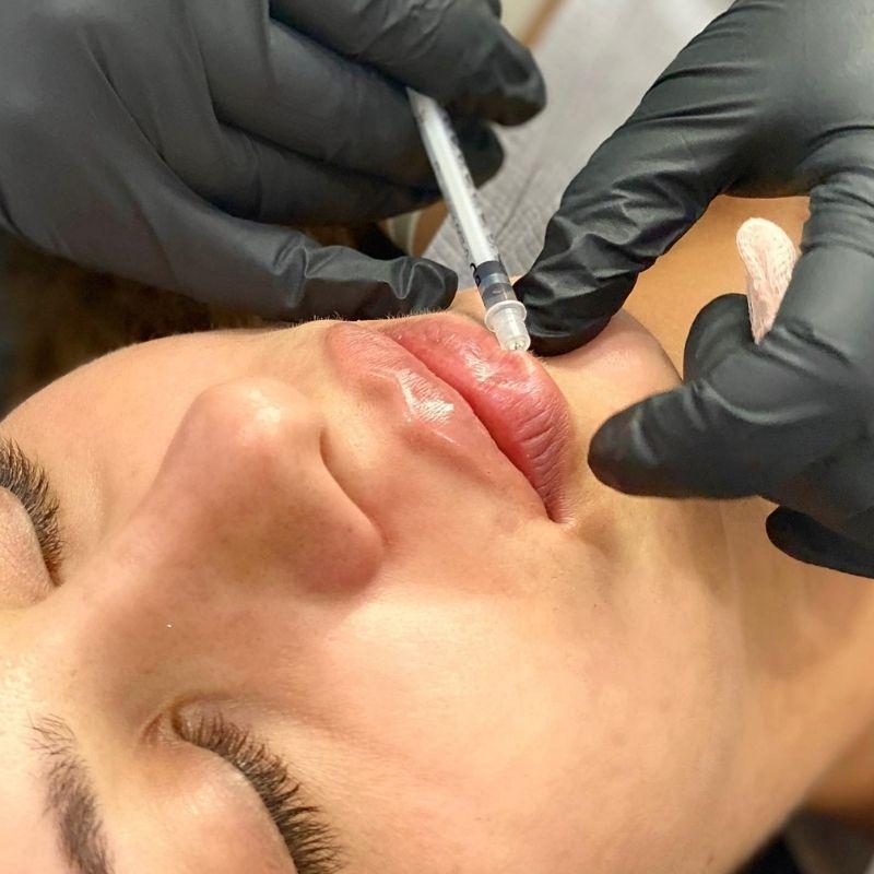Onyx Aesthetic Cosmetic Injections