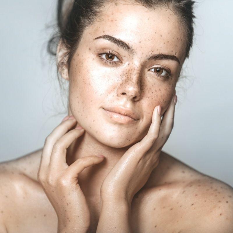 Onyx Aesthetic Pigmentation Treatment